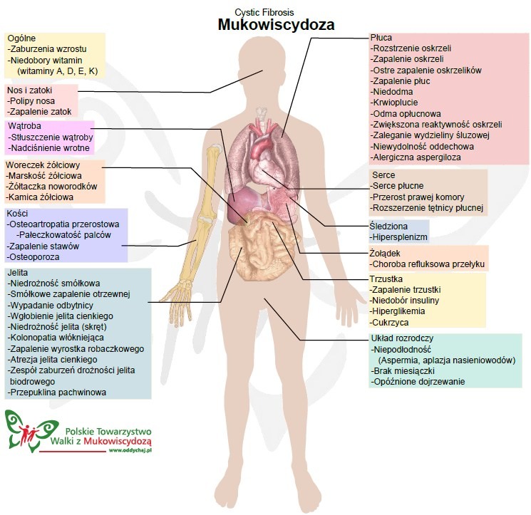 mukowiscydoza_infografika